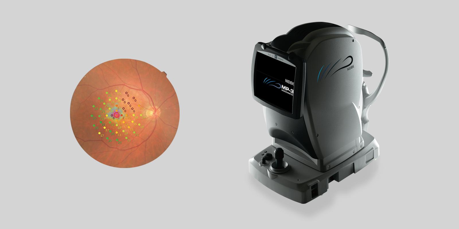 d75b109979 Indo presenta el microperímetro más avanzado: MP3 de NIDEK